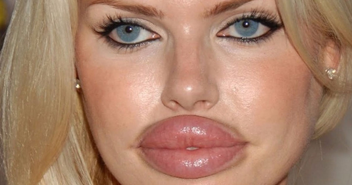 16 Of The Worst Plastic Surgeries Ever Performed On Someone