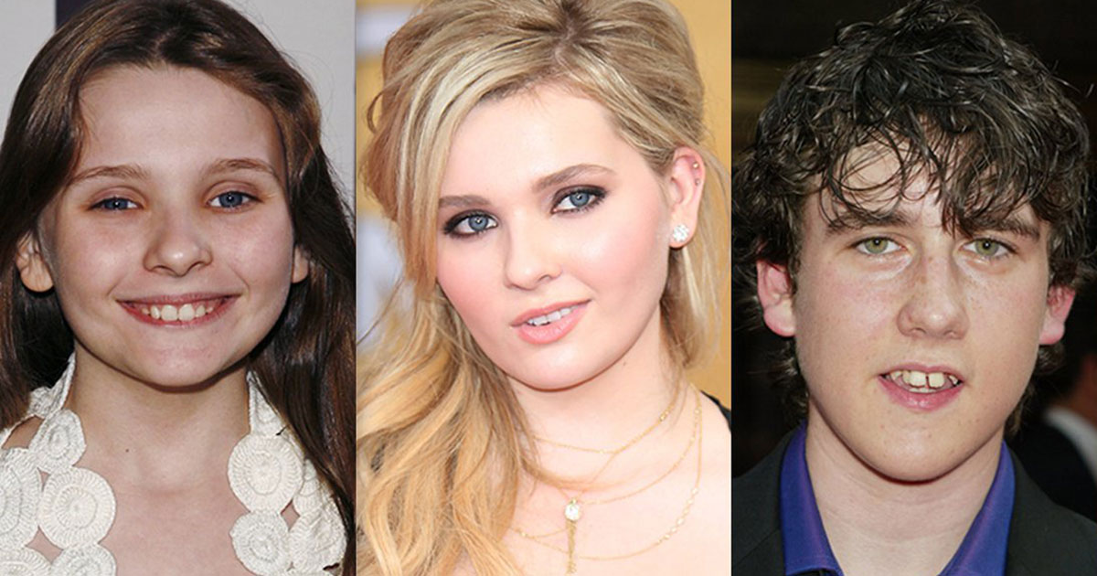 10 Child Stars That Went From Unfortunate Ugly Ducklings To Absolutely Gorgeous
